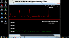 Pendeteksi Detak Jantung dan Kardondioksida Wireless